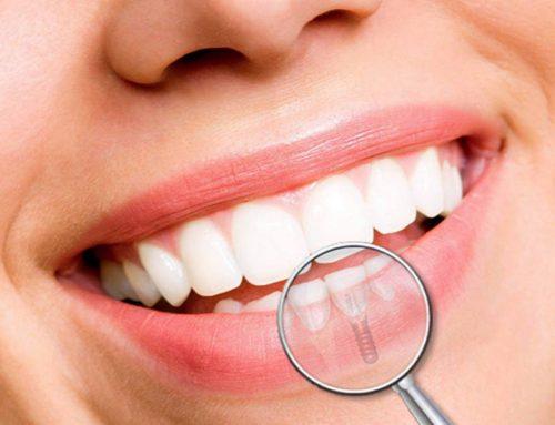 Gyd. burnos chirurgas: viskas apie dantų implantaciją