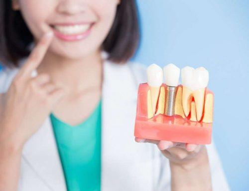 Dantų implantavimas : kiek tiesos yra populiariausiuose mituose? (3 dalis)