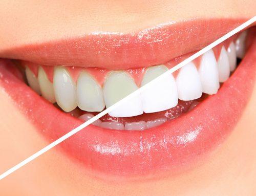 Dantų balinimo metodai: kurie iš jų efektyviausi?