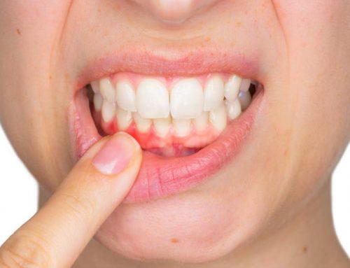 Ignoruodami pirmuosius šios ligos požymius galite netekti savo dantų. Kaip galite to išvengti?