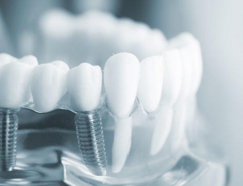 8 taisyklės, kad jūsų implantacijos procedūra būtų sėkminga.