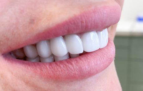 liepų odontologijos klinika